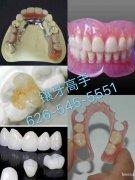洛杉矶镶牙高手、精镶:各种烤瓷牙、全瓷牙、美容牙、金属支架、